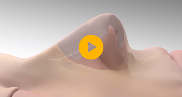 This video explains how LATERA nasal implant is placed in the nose